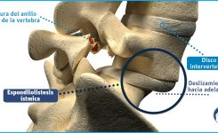 ¿Se puede tener una fractura en la columna sin saberlo?